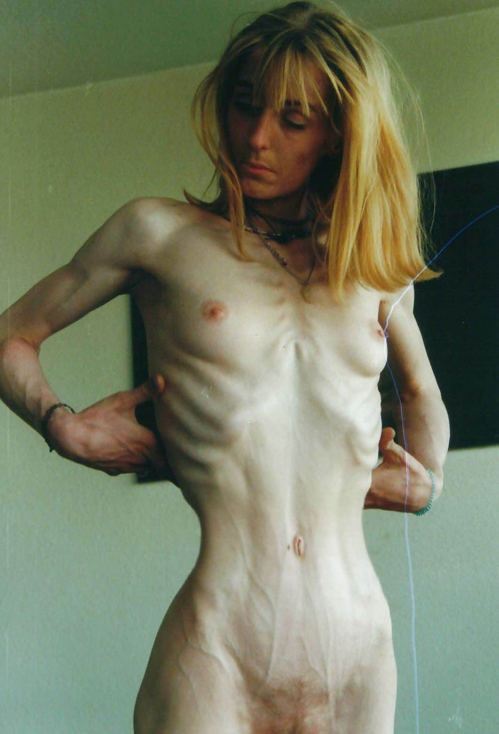 Anorexia Porno amateurs nude anorexic pics - porn galleries. comments: 1