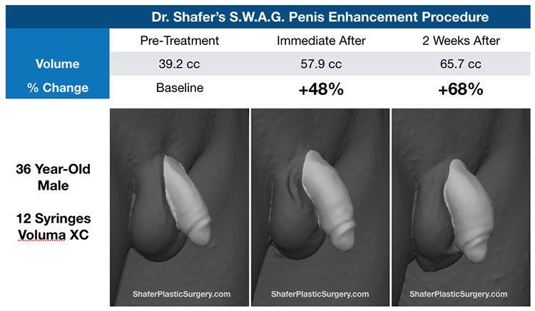 Silicone penis injection massae exercises